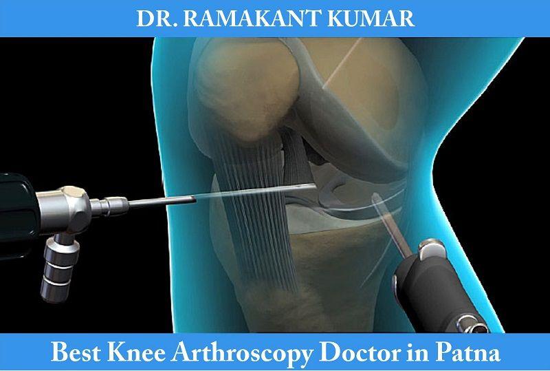 knee arthroscopy doctor in patna
