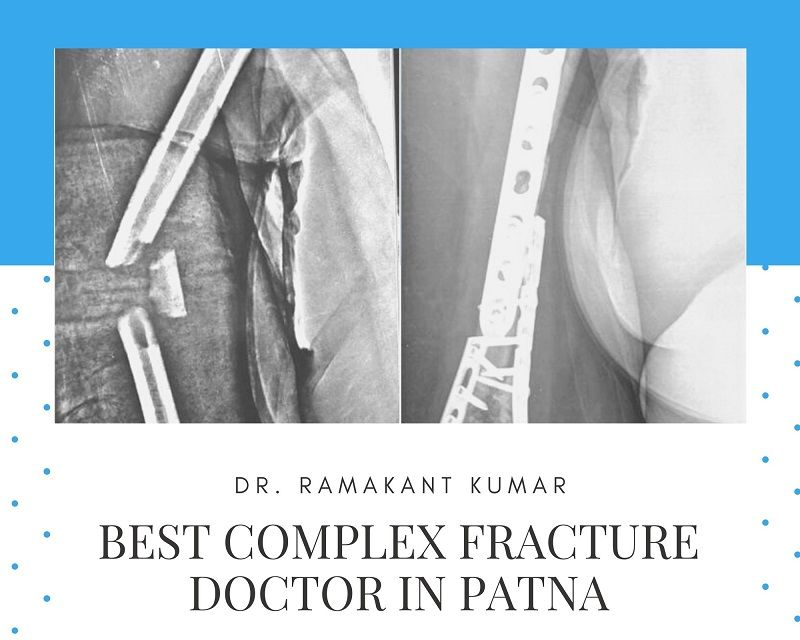 complex fracture doctor in patna