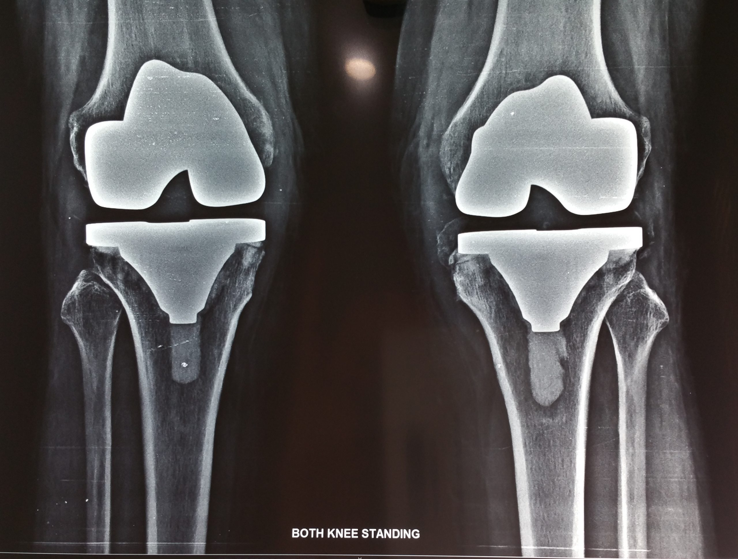 full knee replacement in patna