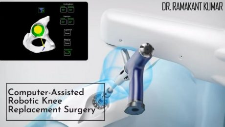 Computer-Assisted Robotic Knee Replacement Surgery