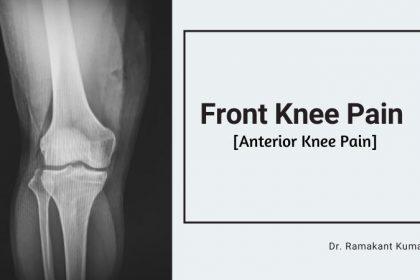 Front Knee Pain (Anterior Knee Pain) Treatment Pain On Top Of Kneecap