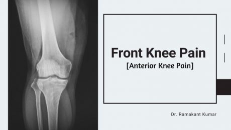 Front Knee Pain