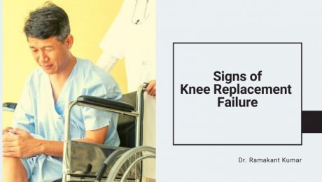 Signs of Knee Replacement Failure