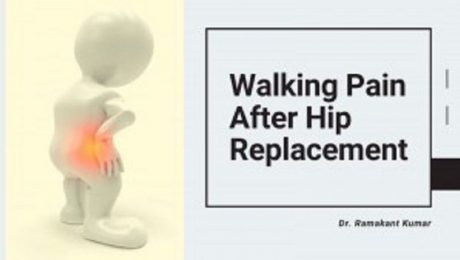 walking pain after hip replacement