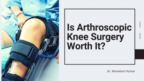 Is Arthroscopic Knee Surgery Worth It