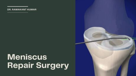 Meniscus Tear Recovery Time without Surgery Archives - Dr ...